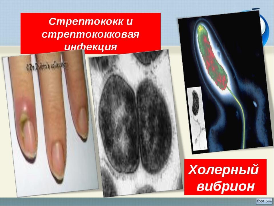 * Стрептококк и стрептококковая инфекция Холерный вибрион