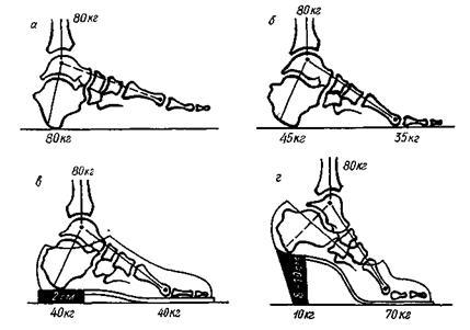 особенности обуви имеют большое значение при распределении нагрузки на передний и задний отделы стопы