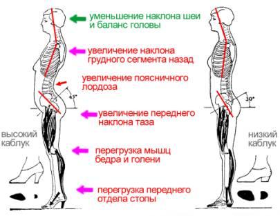 http://www.pozvonochnik.org/images/legs-spine/correction-posture-37.jpg