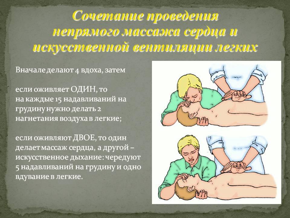 Сочетание проведения непрямого массажа сердца и искусственно…
