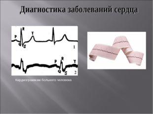 Кардиограмма здорового человека Кардиограммам больного человека