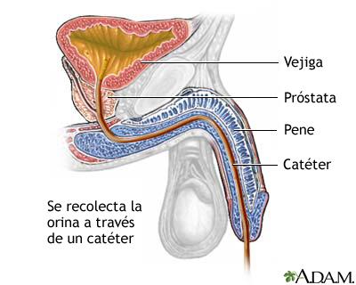 Катетеризация мочевого пузыря у мужчин