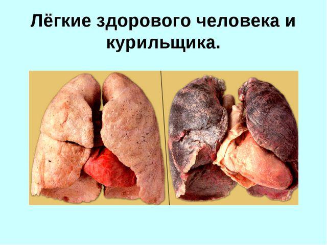 Лёгкие здорового человека и курильщика.
