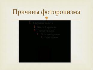 Причины фоторопизма 
