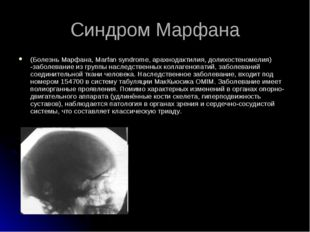 (Болезнь Марфана, Marfan syndrome, арахнодактилия, долихостеномелия) -заболев