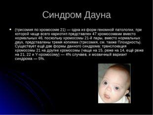 Синдром Дауна (трисомия по хромосоме 21)— одна из форм геномной патологии, п