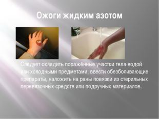 Ожоги жидким азотом Следует охладить поражённые участки тела водой или холодн
