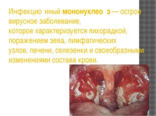 Инфекцио́нныймононуклео́з— острое вирусное заболевание, котороехарактеризу