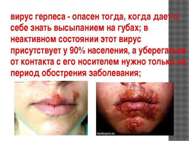 вирус герпеса - опасен тогда, когда дает о себе знать высыпанием на губах; в...