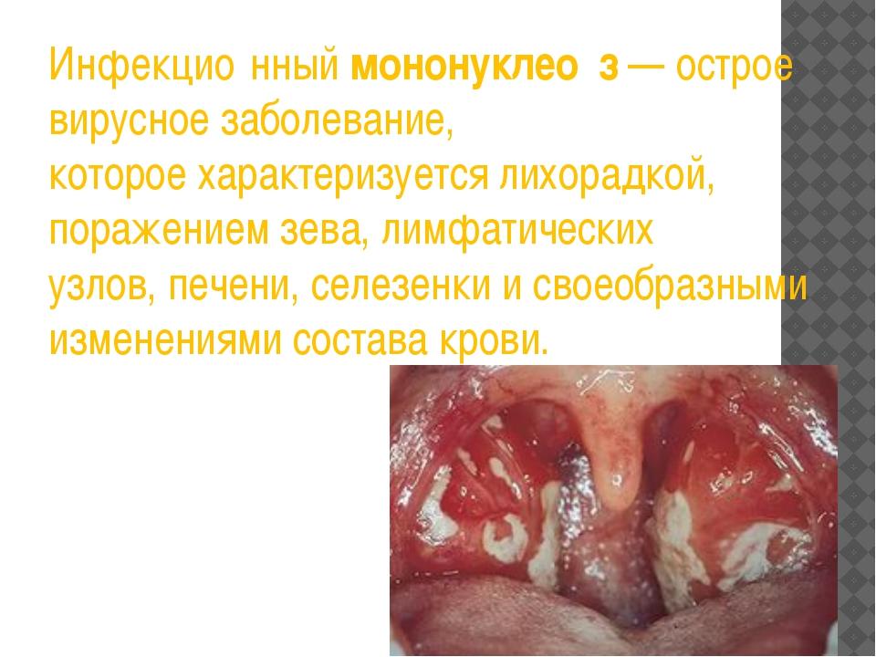 Инфекцио́нныймононуклео́з— острое вирусное заболевание, котороехарактеризу...