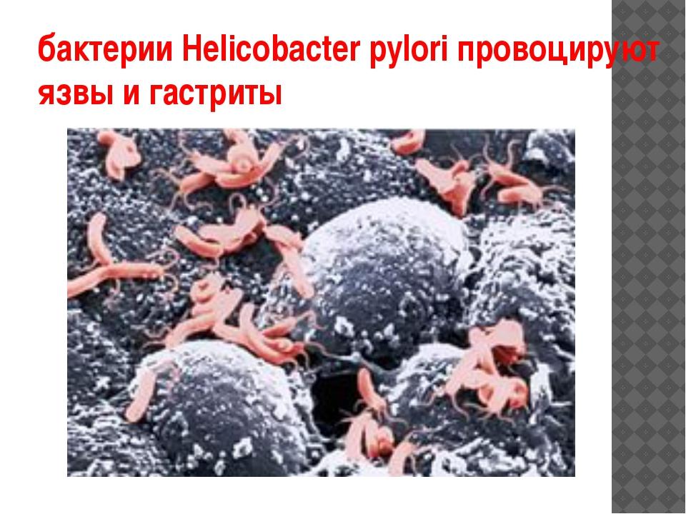 бактерии Helicobacter pylori провоцируют язвы и гастриты