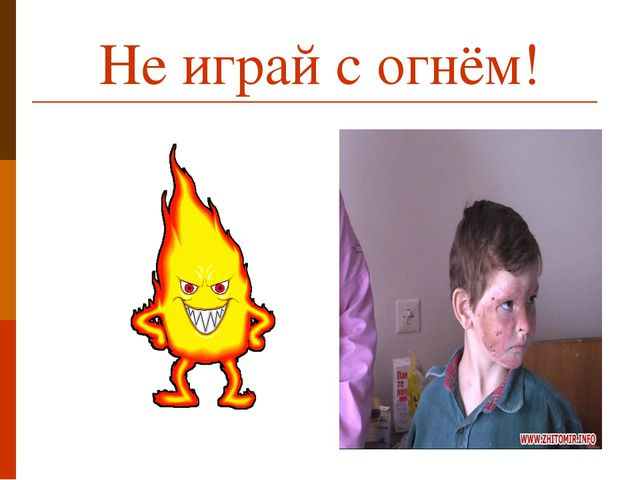Не играй с огнём!