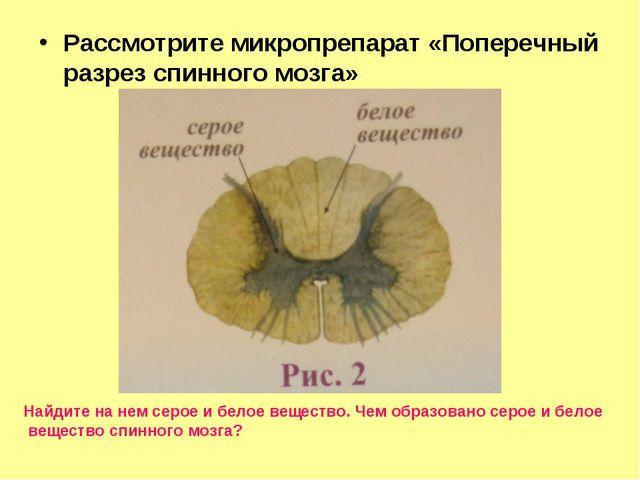 Рассмотрите микропрепарат «Поперечный разрез спинного мозга» Найдите на нем с...