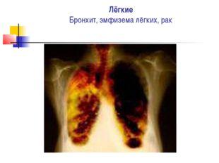 Лёгкие Бронхит, эмфизема лёгких, рак