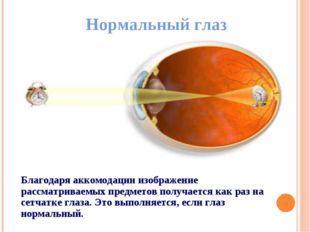 Нормальный глаз Благодаря аккомодации изображение рассматриваемых предметов п