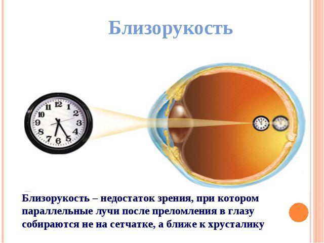 Близорукость Близорукость – недостаток зрения, при котором параллельные лучи...
