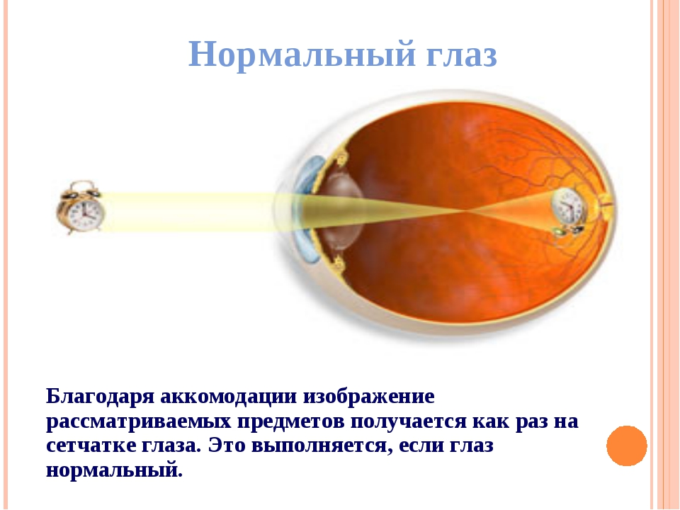 Нормальный глаз Благодаря аккомодации изображение рассматриваемых предметов п...