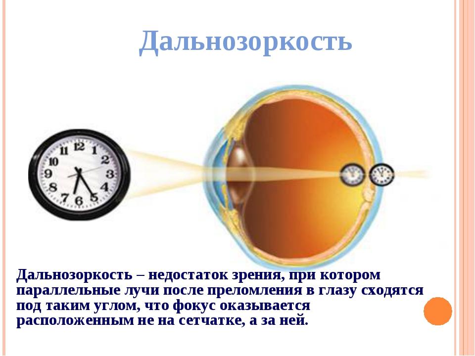 Дальнозоркость Дальнозоркость – недостаток зрения, при котором параллельные л...