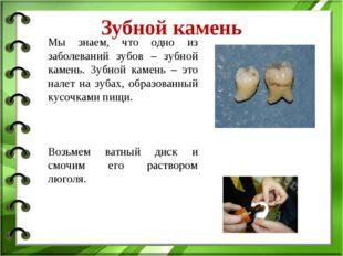 Зубной камень Мы знаем, что одно из заболеваний зубов – зубной камень. Зубной