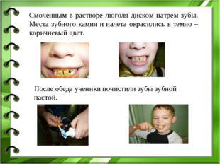 Смоченным в растворе люголя диском натрем зубы. Места зубного камня и налета