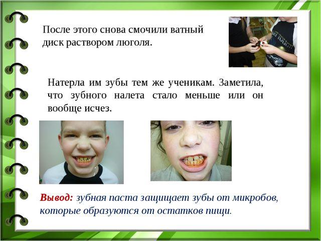 После этого снова смочили ватный диск раствором люголя. Натерла им зубы тем ж...