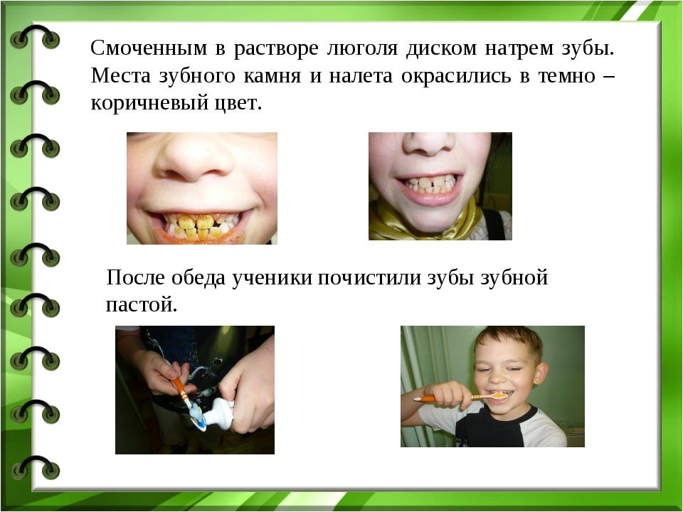 Смоченным в растворе люголя диском натрем зубы. Места зубного камня и налета...