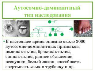 Аутосомно-доминантный тип наследования В настоящее время описано около 30