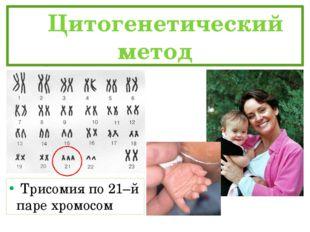 Цитогенетический метод Трисомия по 21–й паре хромосом