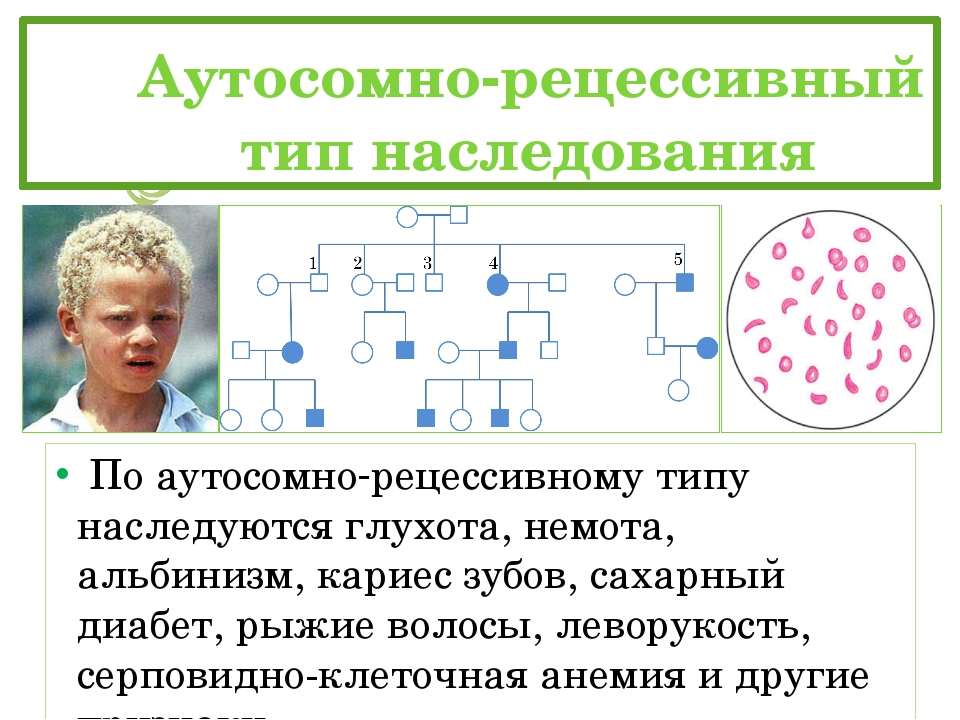 Аутосомно-рецессивный тип наследования По аутосомно-рецессивному типу нас...