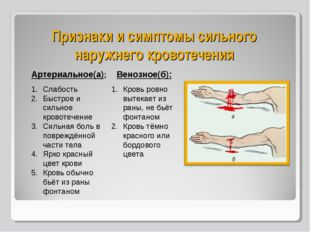 Признаки и симптомы сильного наружнего кровотечения Артериальное(а): Слабость