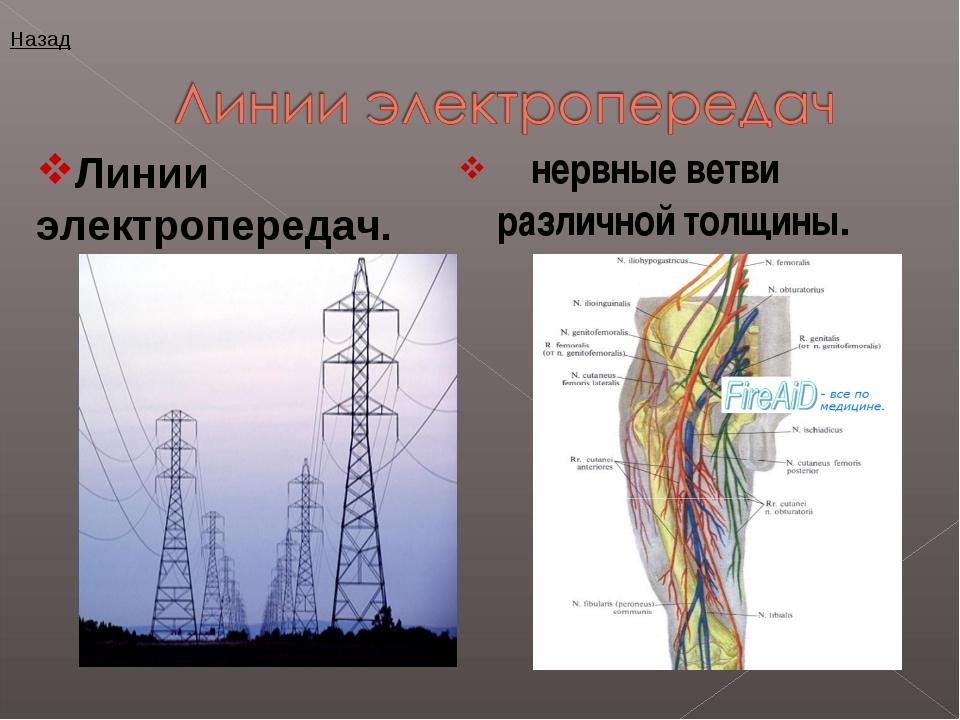 нервные ветви различной толщины. Линии электропередач. Назад
