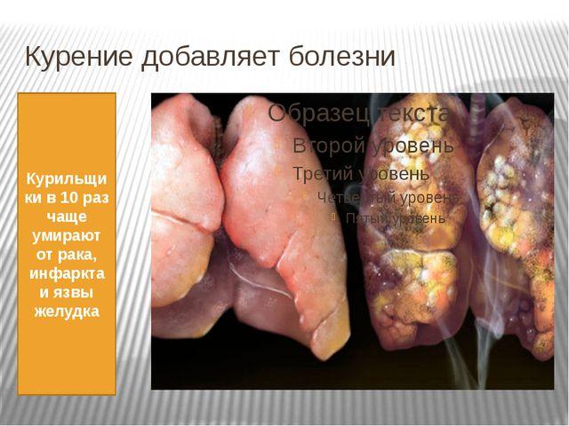 Курение добавляет болезни Курильщики в 10 раз чаще умирают от рака, инфаркта...