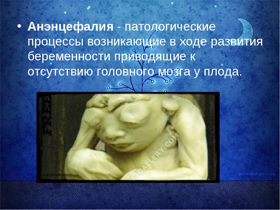 Анэнцефалия - патологические процессы возникающие в ходе развития беременнос...