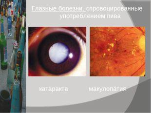 Глазные болезни, спровоцированные употреблением пива катаракта макулопатия