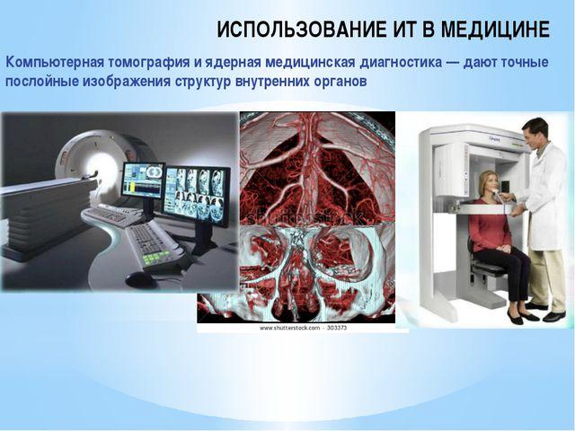 ИСПОЛЬЗОВАНИЕ ИТ В МЕДИЦИНЕ Компьютерная томография и ядерная медицинская диа...