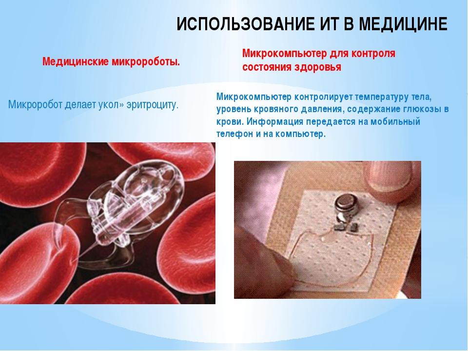 ИСПОЛЬЗОВАНИЕ ИТ В МЕДИЦИНЕ Микроробот делает укол» эритроциту. Микрокомпьюте...