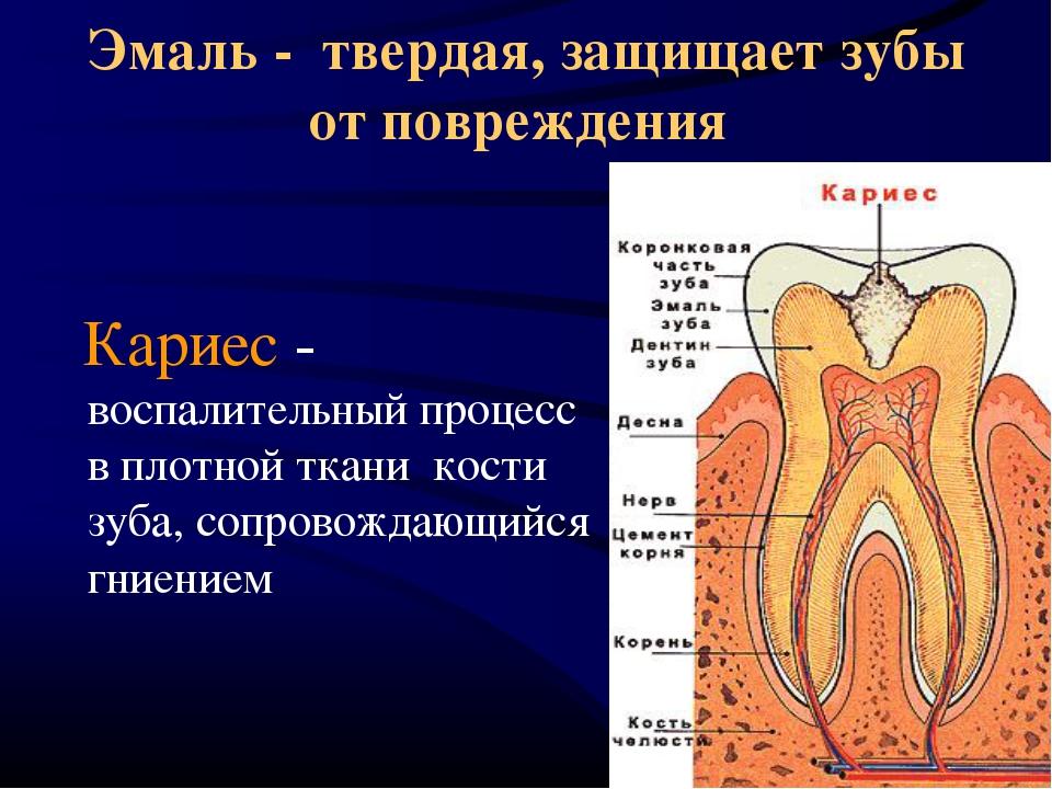 Предохранить зубы от кариес