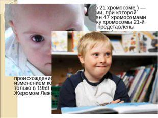 Синдром Да́уна (трисомия X по 21 хромосоме ) — одна из форм геномной патологи