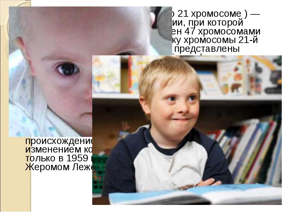 Синдром Да́уна (трисомия X по 21 хромосоме ) — одна из форм геномной патологи...