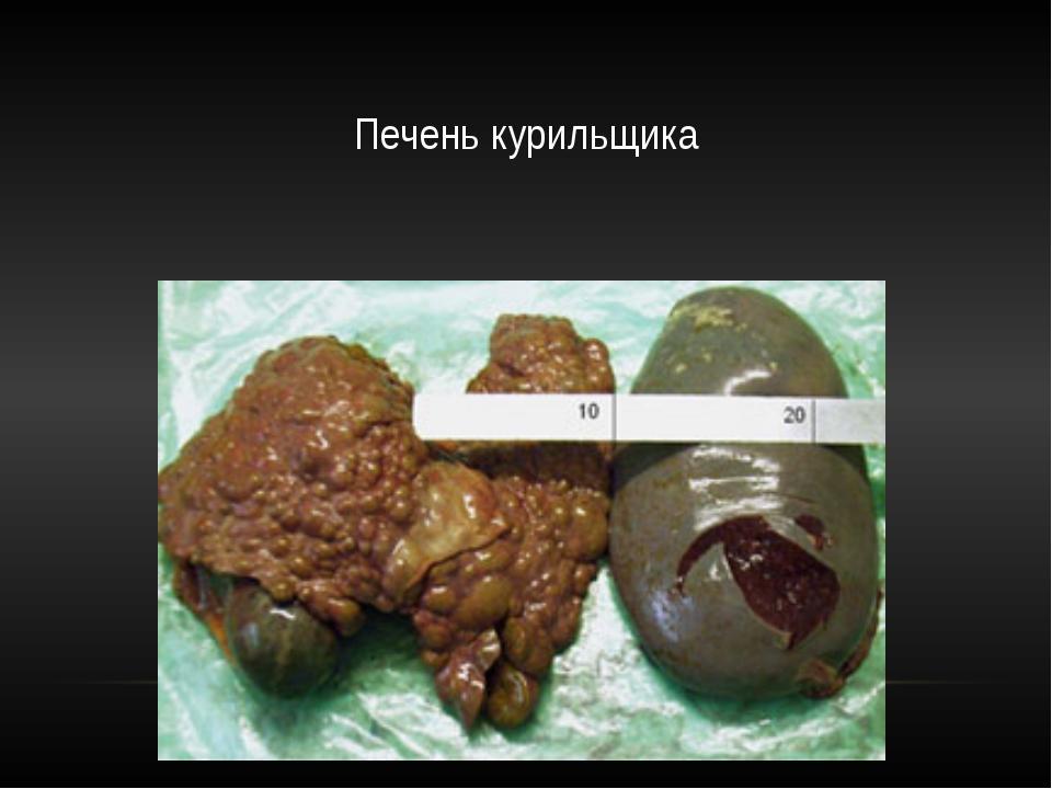 Печень курильщика