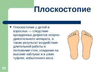 * Плоскостопие Плоскостопие у детей и взрослых — следствие врожденных дефекто