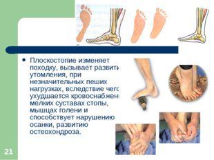 * Плоскостопие изменяет походку, вызывает развитие утомления, при незначитель