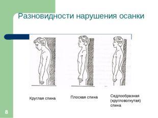 * Разновидности нарушения осанки Круглая спина Плоская спина Седлообразная (к