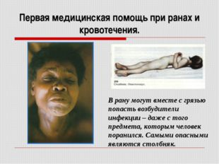 Первая медицинская помощь при ранах и кровотечения. В рану могут вместе с гря