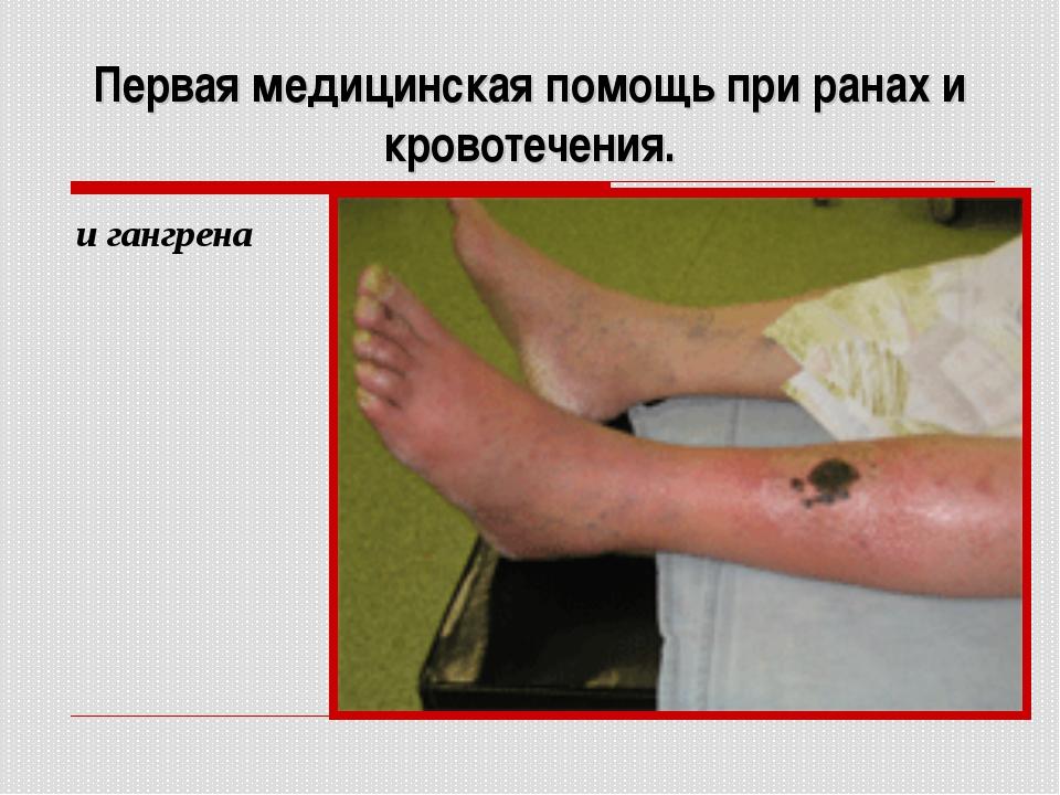 Первая медицинская помощь при ранах и кровотечения. и гангрена