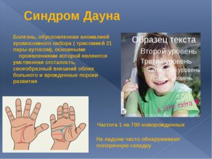 Синдром Дауна Болезнь, обусловленная аномалией хромосомного набора ( трисомие