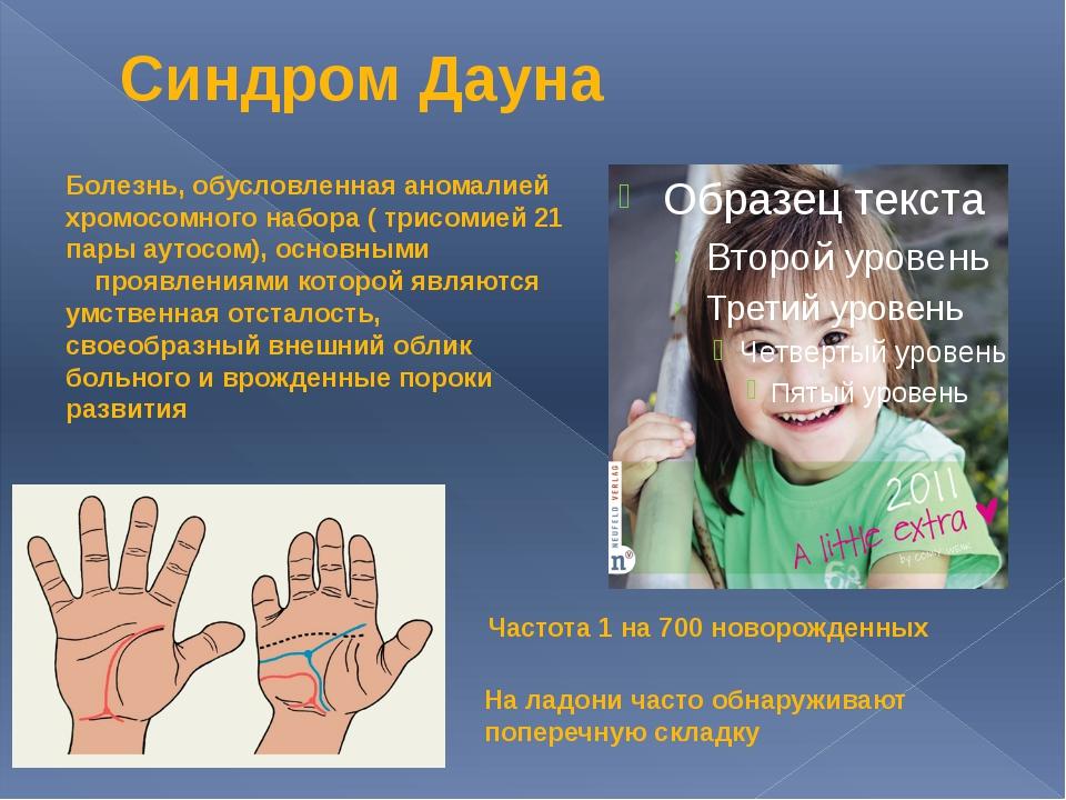 Синдром Дауна Болезнь, обусловленная аномалией хромосомного набора ( трисомие...