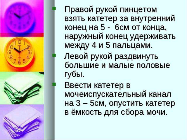 Правой рукой пинцетом взять катетер за внутренний конец на 5 - 6см от конца,...