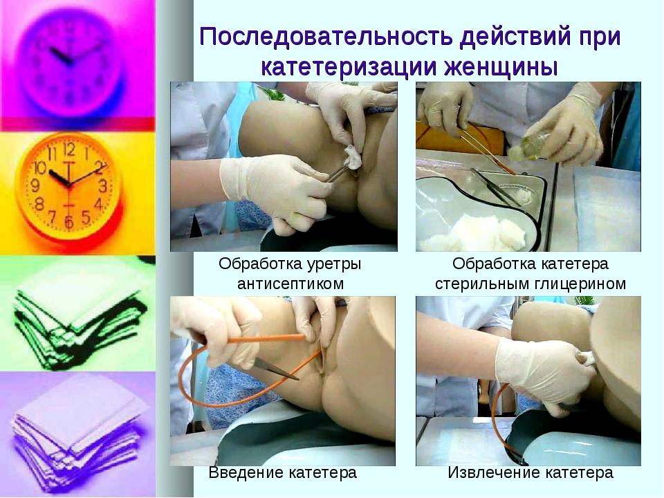 Последовательность действий при катетеризации женщины Обработка уретры антисе...