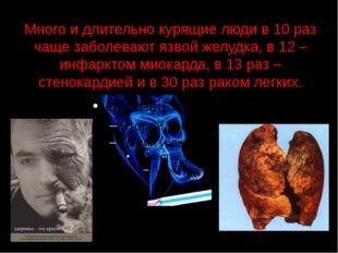 Много и длительно курящие люди в 10 раз чаще заболевают язвой желудка, в 12 –